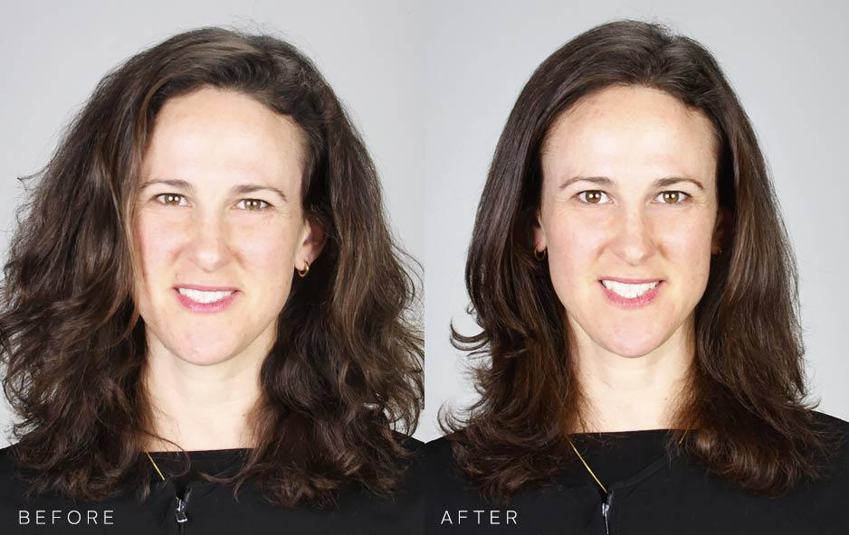 Before and After: Simone